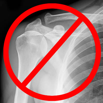 X-rays and Gamma Rays are Known Human Carcinogens - Cancer-Causing Agents